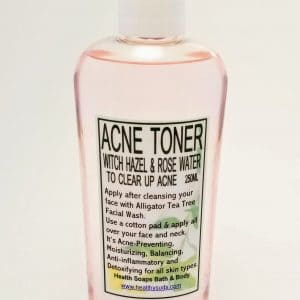 Acne Toner (Witch Hazel & Organic Rose Water) 250ml
